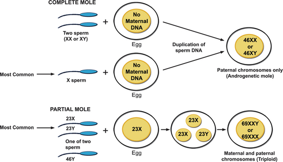 FIGURE 29 2 Patterns Of Fertilization To Account For Chromosomal Origin Complete 46 XX And Triploid Partial Moles XXY In A Mole