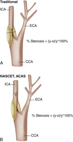 Ultrasound Assessment Of Carotid Stenosis Radiology Key