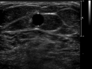 ultrasound evaluation before and after hemodialysis access, Cephalic Vein