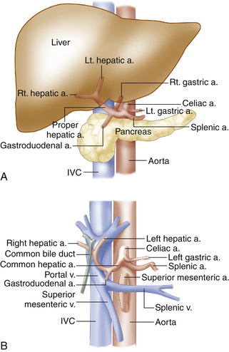 Anatomy and normal doppler signatures of abdominal vessels for Hepatic portal v