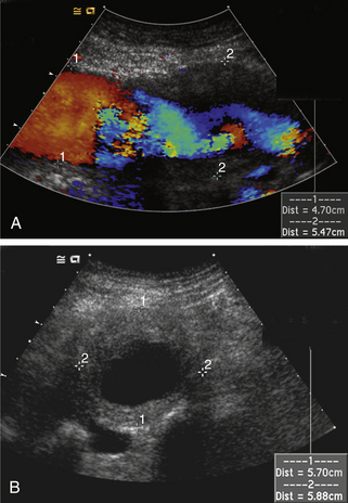 Ultrasound assessment of the abdominal aorta radiology key for Aortic mural thrombus