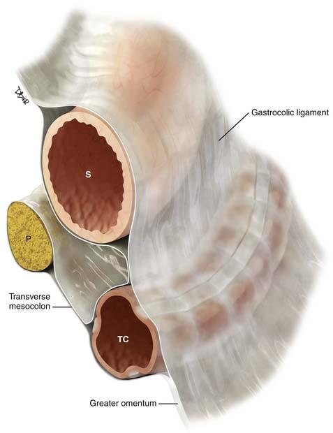 Peritoneal Cavity And Gastrointestinal Tract