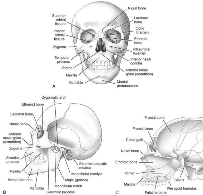 Skull Facial Bones And Paranasal Sinuses Radiology Key