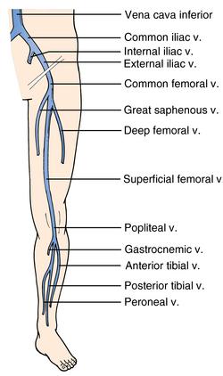Ultrasonography for deep venous thrombosis | Radiology Key