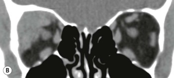 Axial Tomography of the Optic Canals in Children  Radiology