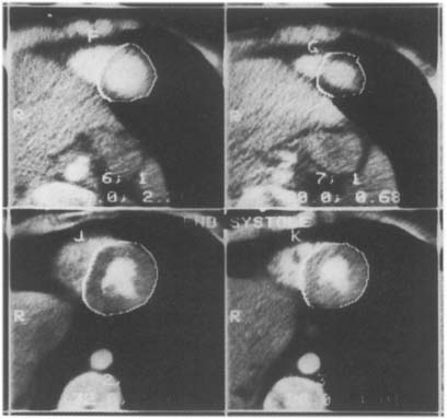 Analysis of Heart Geometry and Function | Radiology Key