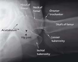Extremity XR anatomy II: pelvis and lower limb | Radiology Key X Ray Femur 2 Views