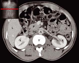 Abdominal CT anatomy | Radiology Key