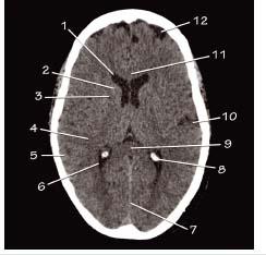 Ct head anatomy