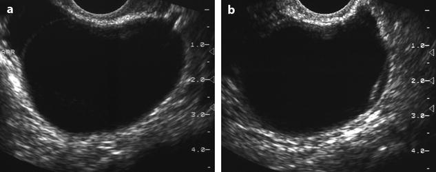Functional Lesions of the Ovary | Radiology Key