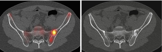 Spect Ct In Orthopedics Radiology Key