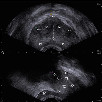 Trus prostate anatomy