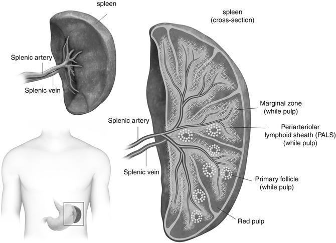 Splenic Lesions | Radiology Key