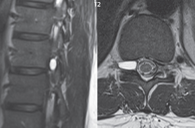 spine | radiology key, Skeleton