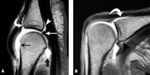 MRI of Finger Ligaments | Radiology Key