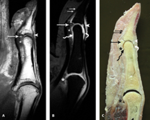 Mri Of Finger Tendons Radiology Key
