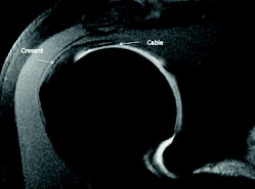 Mri Of The Rotator Cuff Radiology Key