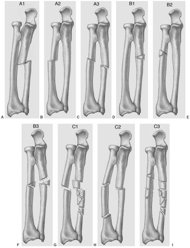 The Radius and Ulna | Radiology Key