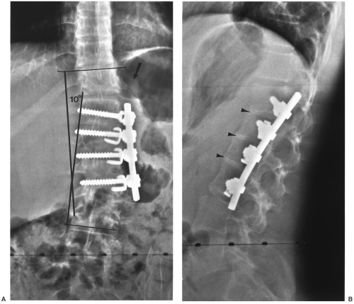 Spinal Instrumentation Radiology Key
