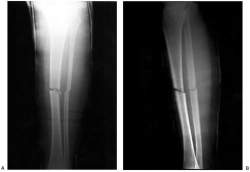 Tibial And Fibular Shafts Radiology Key