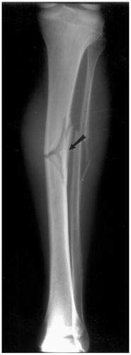 Tibia Shaft Fractures