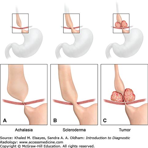 Patulous Esophagus Gastrointestinal...