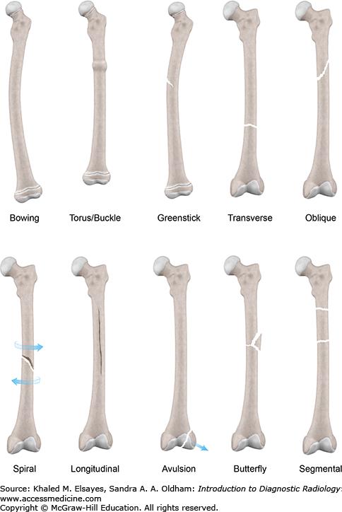 Musculoskeletal Radiology Key
