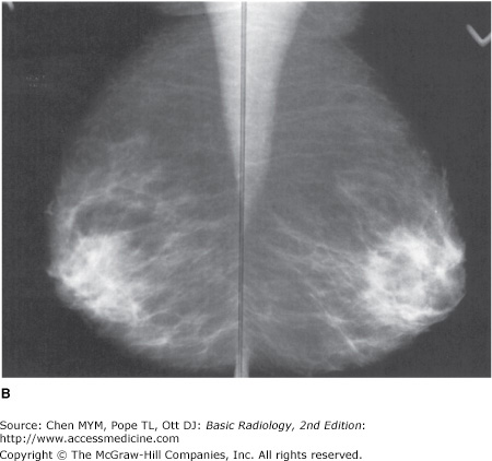how to help patient with difficulty with breast compression mammography