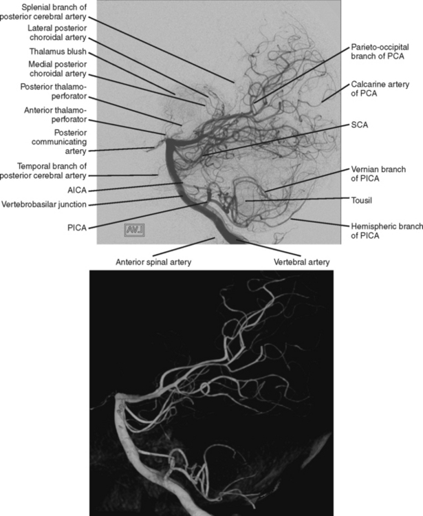 Clinical-Anatomical Syndromes of Ischemic Infarction | Radiology Key