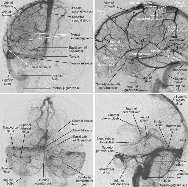 Cerebral Venous Thrombosis | Radiology Key