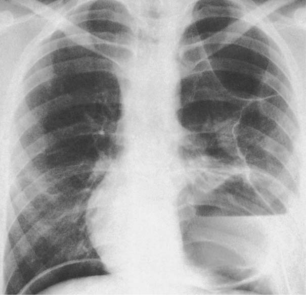 Atelectasis In The Right Lung Base
