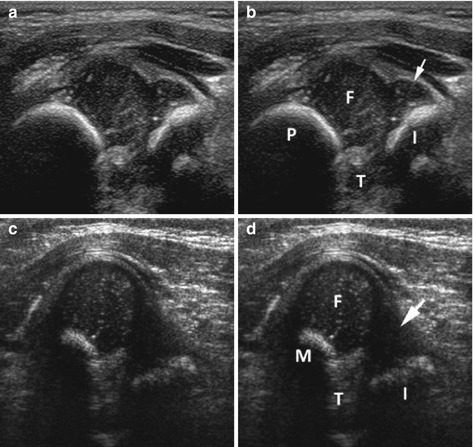 Small Part and Hip Ultrasound | Radiology Key
