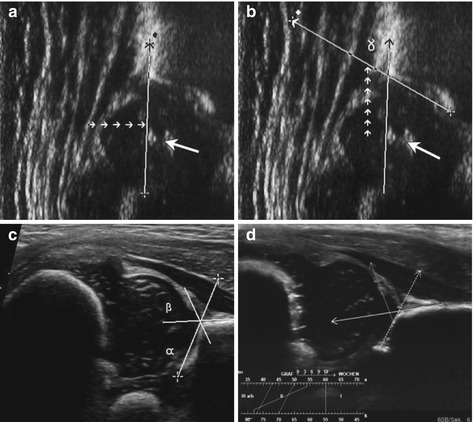 Small Part And Hip Ultrasound Radiology Key
