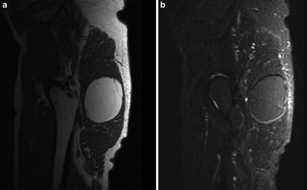 in Muscle Tumors and Tumors of Fasciae and Tendon Sheaths