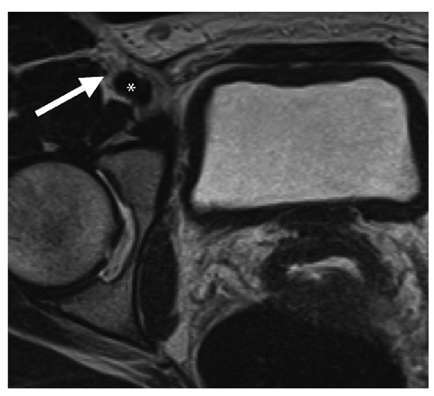 neuropathies of the lower extremity | radiology key, Muscles