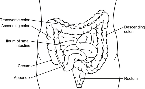 Suspect appendicitis radiology key figure 11 3 diagram of the normal location of the appendix the appendix lies at the inferior tip of the cecum near the junction of the terminal ileum of ccuart Gallery
