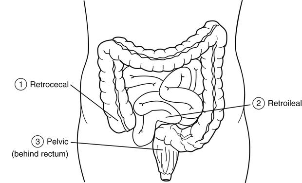 suspect appendicitis