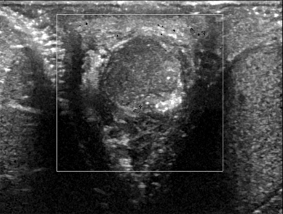 Scrotal Mass and Scrotal Pain | Radiology Key