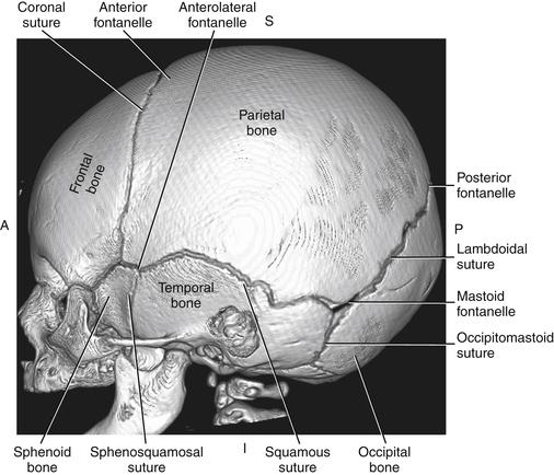 Premature Birth: Rule Out Germinal Matrix Hemorrhage   Radiology Key