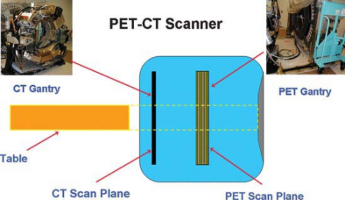 schematic diagram of ct (left) and pet gantry (right) in a pet/ct scanner