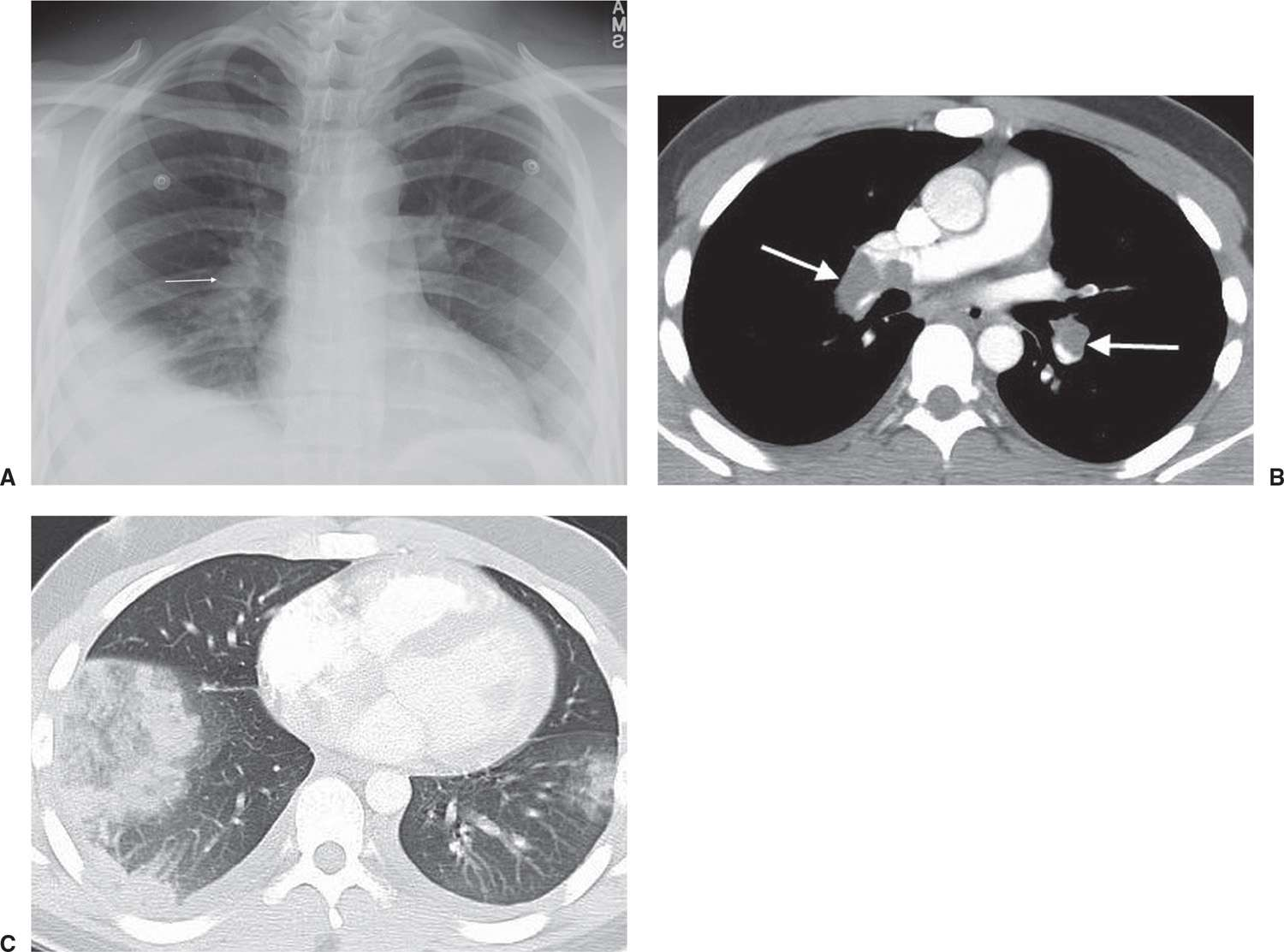2.17 u2022 Knuckle sign. A PA chest radiograph shows an enlarged right pulmonary artery (arrow) and abnormal opacity in the right lower lobe.  sc 1 st  Plastic Surgery Key & Signs and Patterns of Lung Disease | Radiology Key