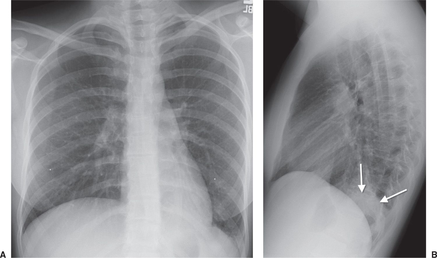 A PA chest radiograph of a patient with left lower lobe pneumonia shows abnormal opacity obscuring the left hemidiaphragm (silhouette sign). & Signs and Patterns of Lung Disease | Radiology Key