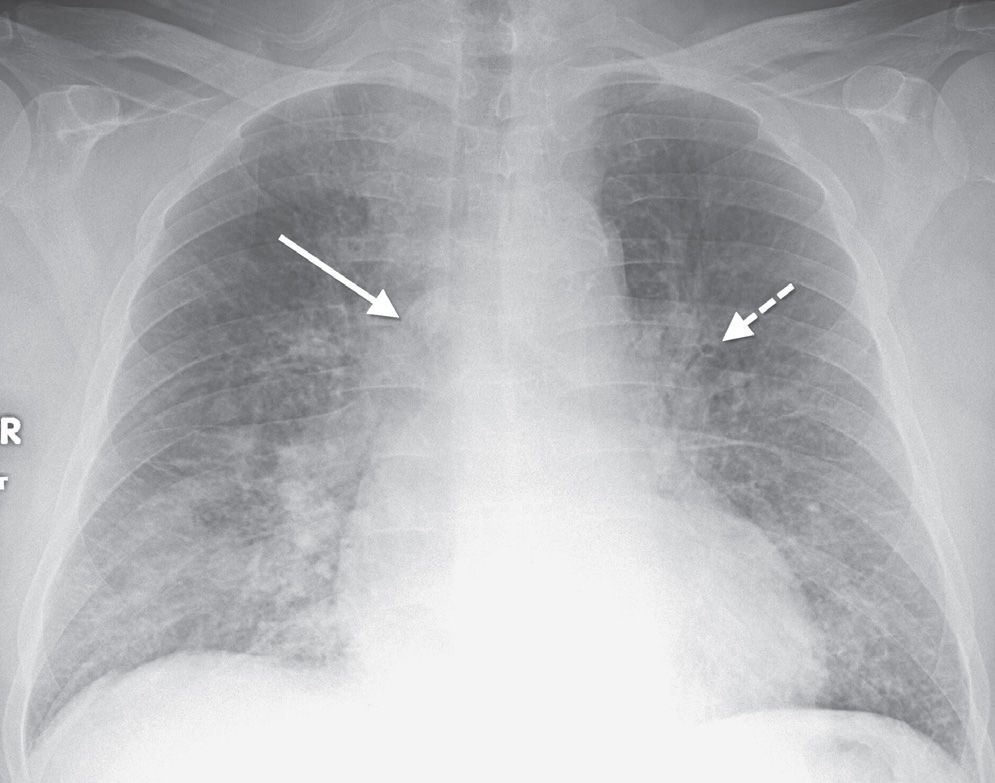 Watch likewise 11389640 moreover Veines De La Tete Et Du Cou furthermore The Lungs Anatomy Of The Thorax in addition Page28 1006 Full. on azygos vein