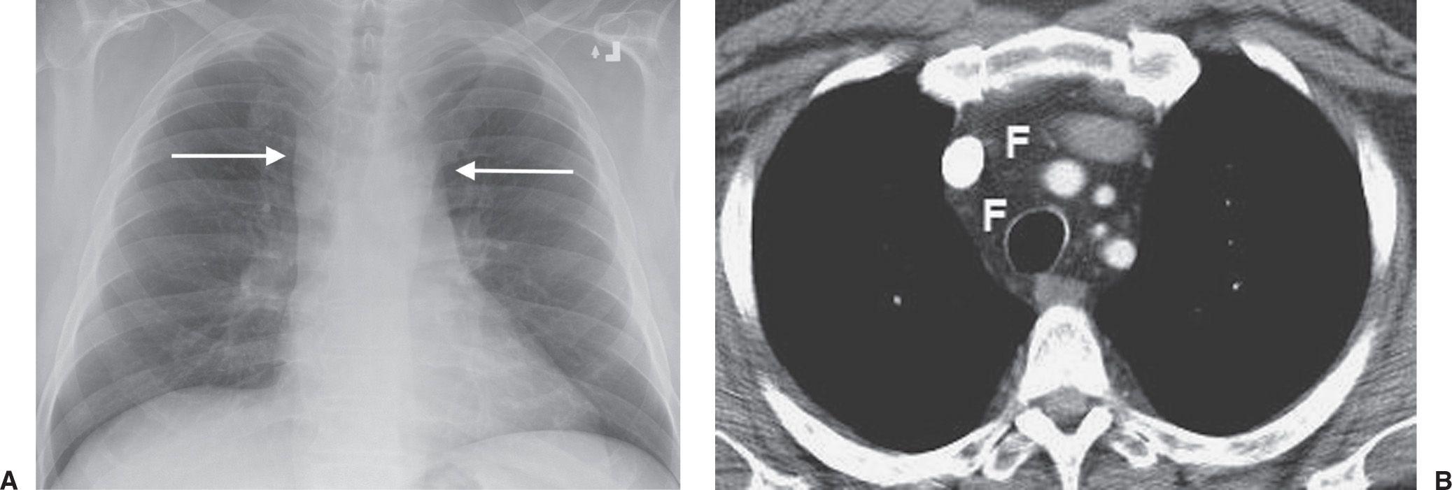 Mediastinal Masses Radiology Key