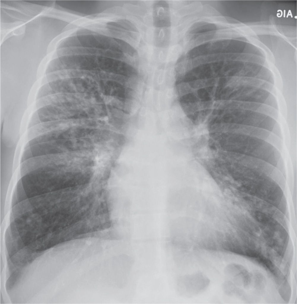 Upper Lung Disease, Infection, and Immunity   Radiology Key