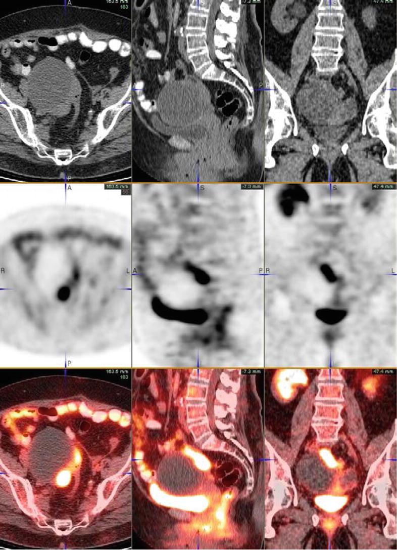 Imaging Of Ovarian Cancer Radiology Key