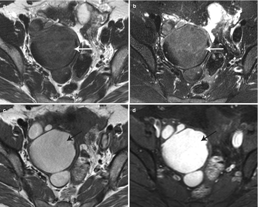 Cross sectional imaging of the uterus radiology key for Complex ovarian cyst with mural nodule