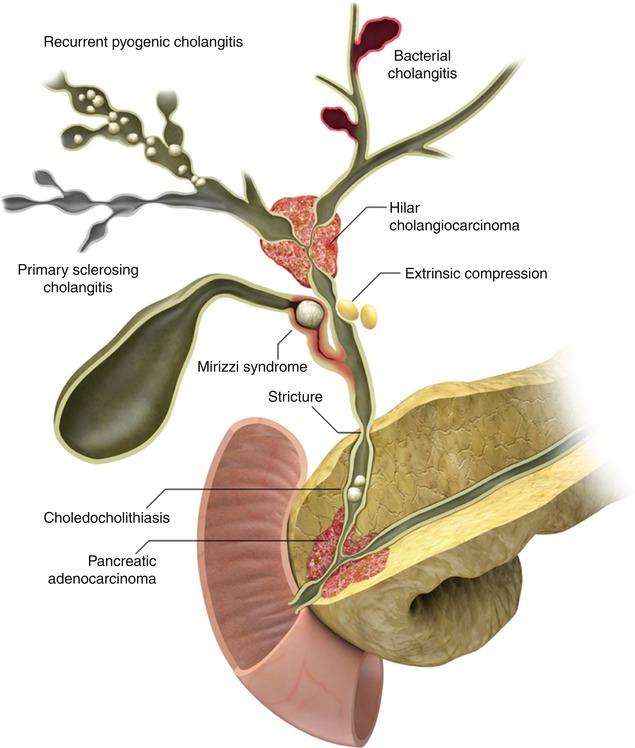 The Biliary Tree Radiology Key