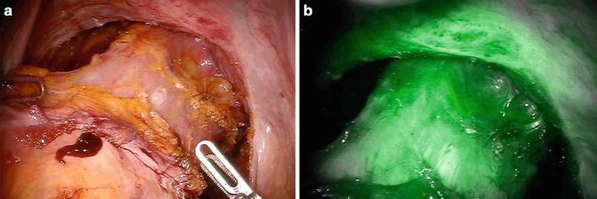 Robotic Surgery Using Firefly System Radiology Key