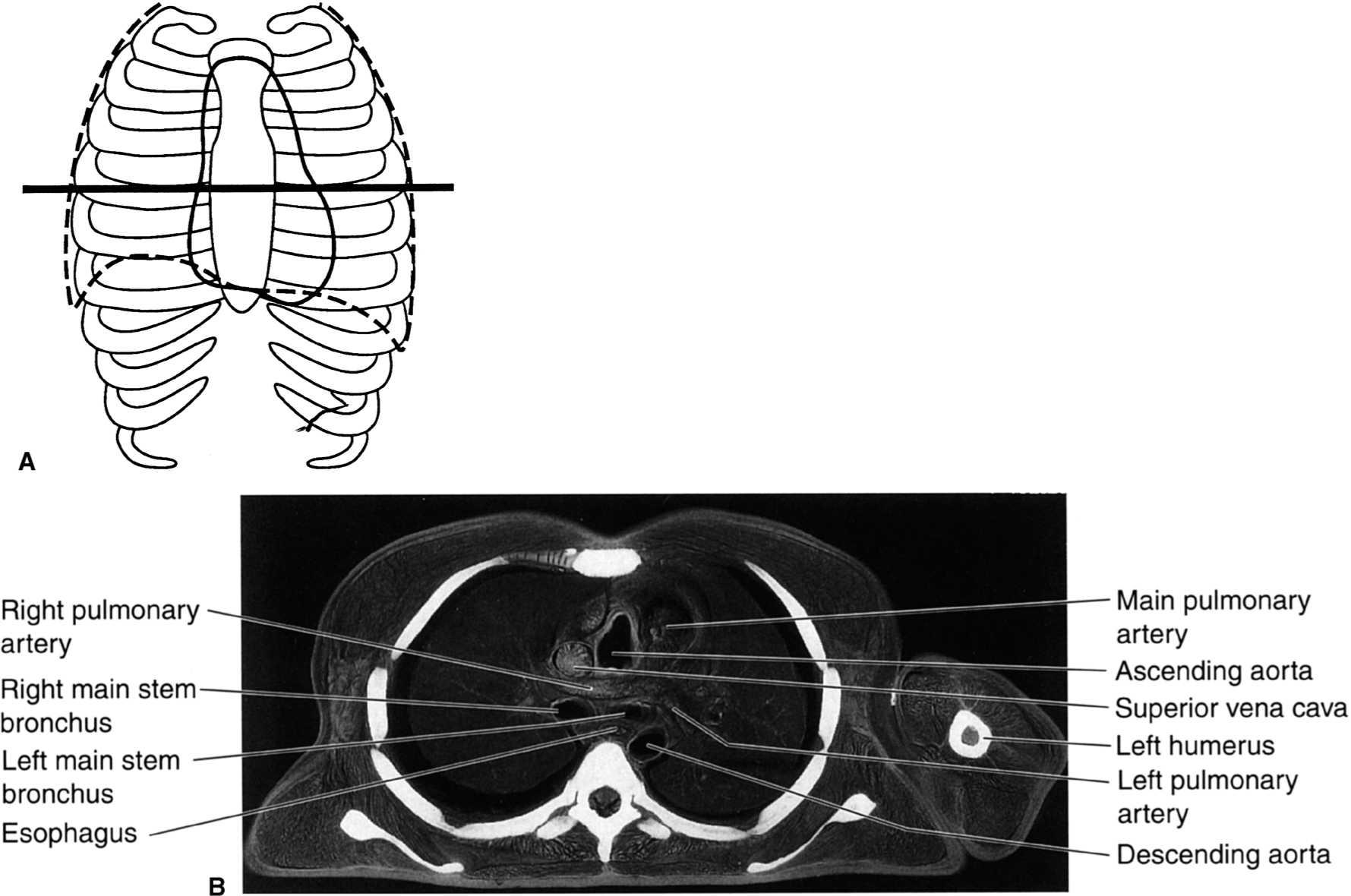 Chest   Radiology Key
